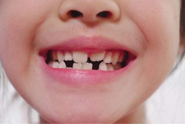 変わり 乳歯 生え
